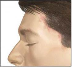 Dermatite seborroica del cuoio capelluto cause e rimedi - dermatite seborroica capelli rimedi