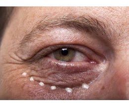 Diseases That Cause Dark Circles Under the Eyes | eHow