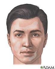 Ilustración de un hombre con lesiones de vitiligo en la cara