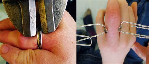 Titanium vs Gold as Wedding Bands For Your Finger?s Safety