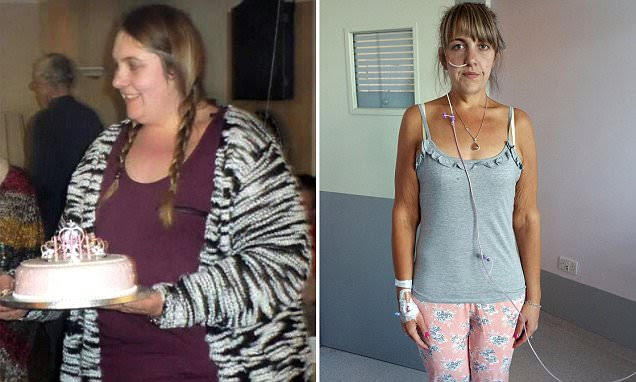 Victoria Burnham who shed 11st now battling anorexia and 'obsessed' with dieting