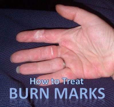 Do burn marks go away? - Page 2 - Off-Topic - Geeks to Go!