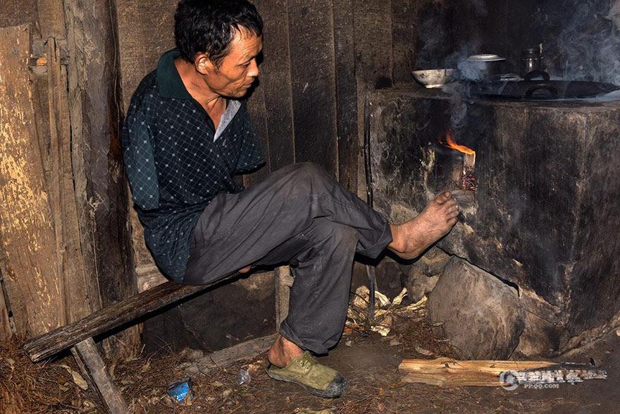 -doentes-Mãe-dentes-braços perderam-homem-alimentação-chen-Xinyin-22