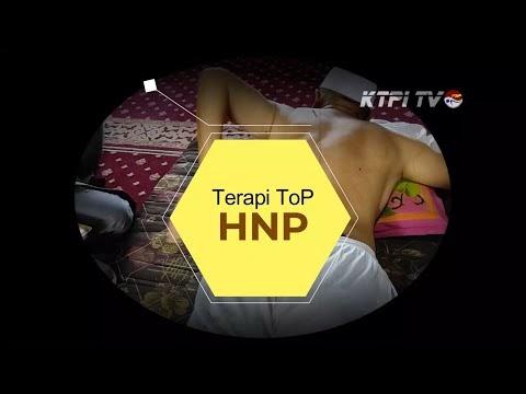 Terapi ToP HNP atau Syaraf Kejepit dengan Totok Punggung