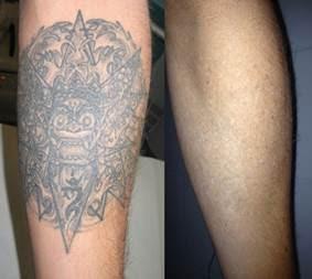 6 De Cada 10 Se Arrepienten De Haberse Hecho Un Tatuaje