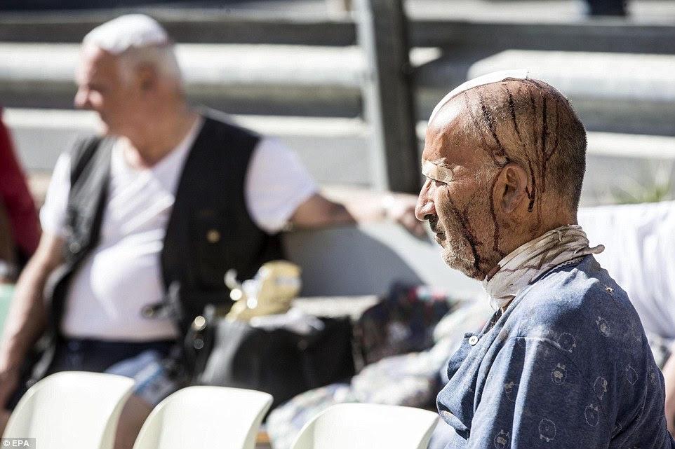 Enfaixado: Um homem que sofreu uma lesão na cabeça durante o terremoto devastador é retratado na cidade de Amatrice