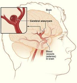 写真:脳動脈瘤