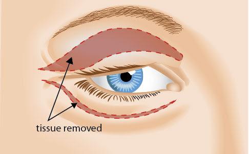 Eyelid Plastic Surgery Knoxville   Blepharoplasty ...