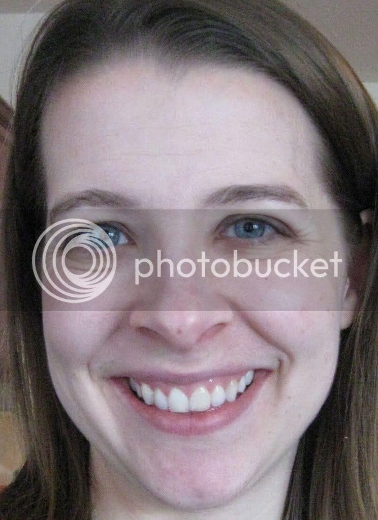 non whitened teeth