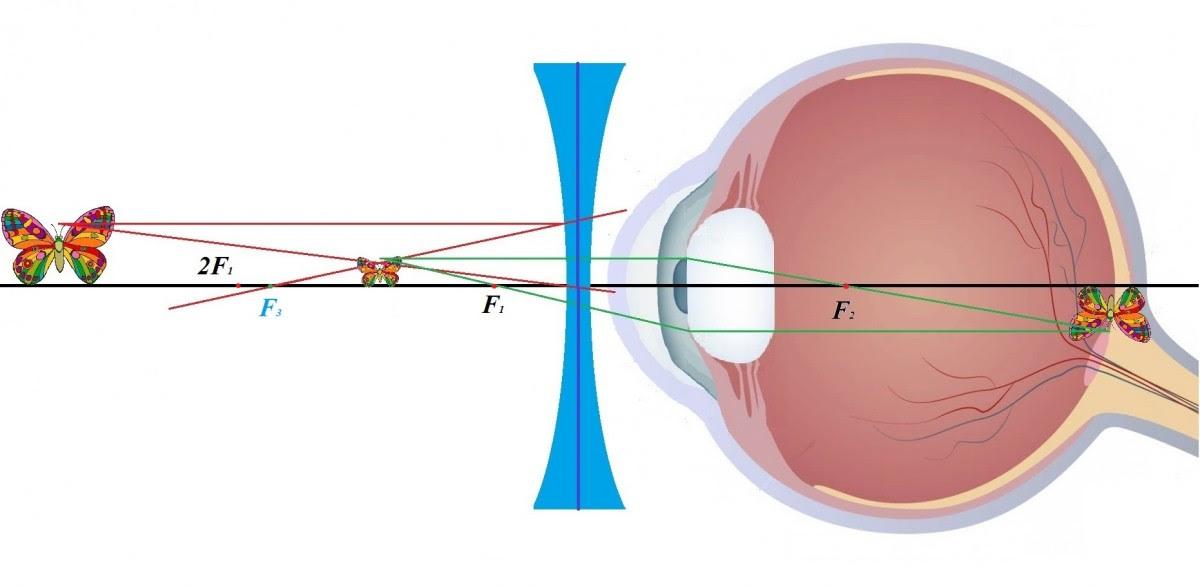 Как очки убивают наше зрение. Естественное восстановление зрения - метод Шичко-Бейтса