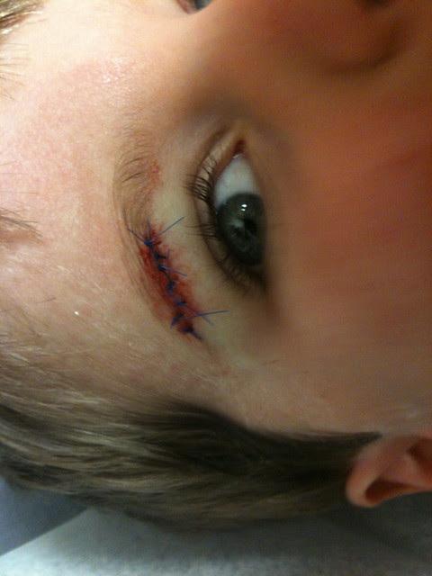7 stitches