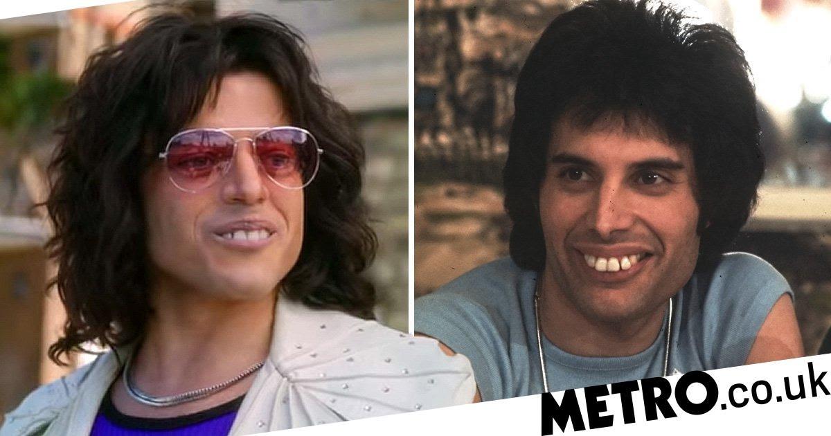 Freddie Mercury Teeth / The Curious Case Of Freddie