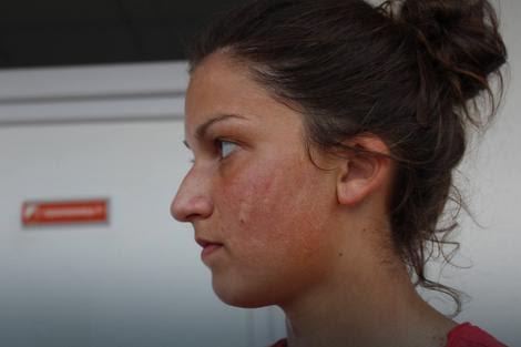 Nevena Miladinović nakon što je Čapelja ošamario