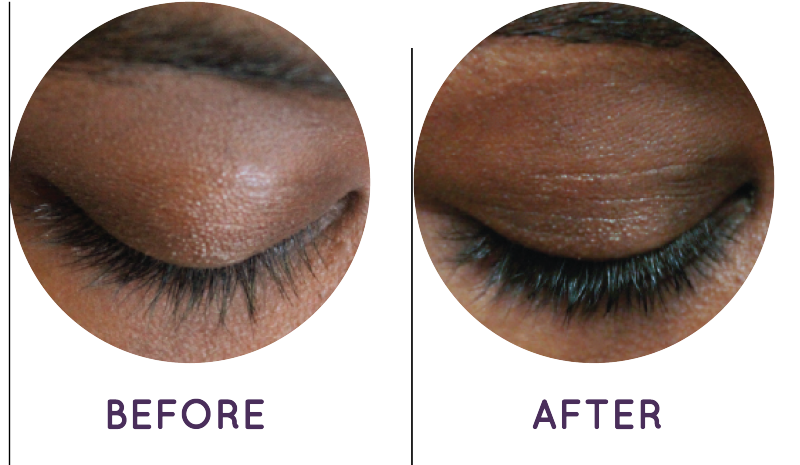 Wink Eyebrow Serum Before And After - Eyebrows Idea