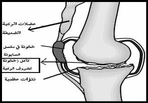 خشونة الركبة
