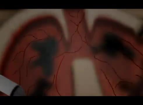 Sigaranın Rüyası Izle Video Eğitim Bilişim Ağı