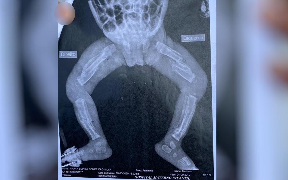 Bebê de 6 meses que foi espancada pelos pais e teve 12 ossos quebrados morre em UTI de Goiás
