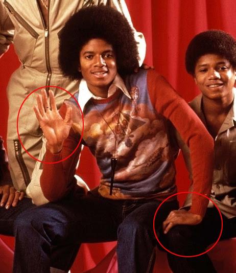 Michael Jawa Michael Jackson And Vitiligo