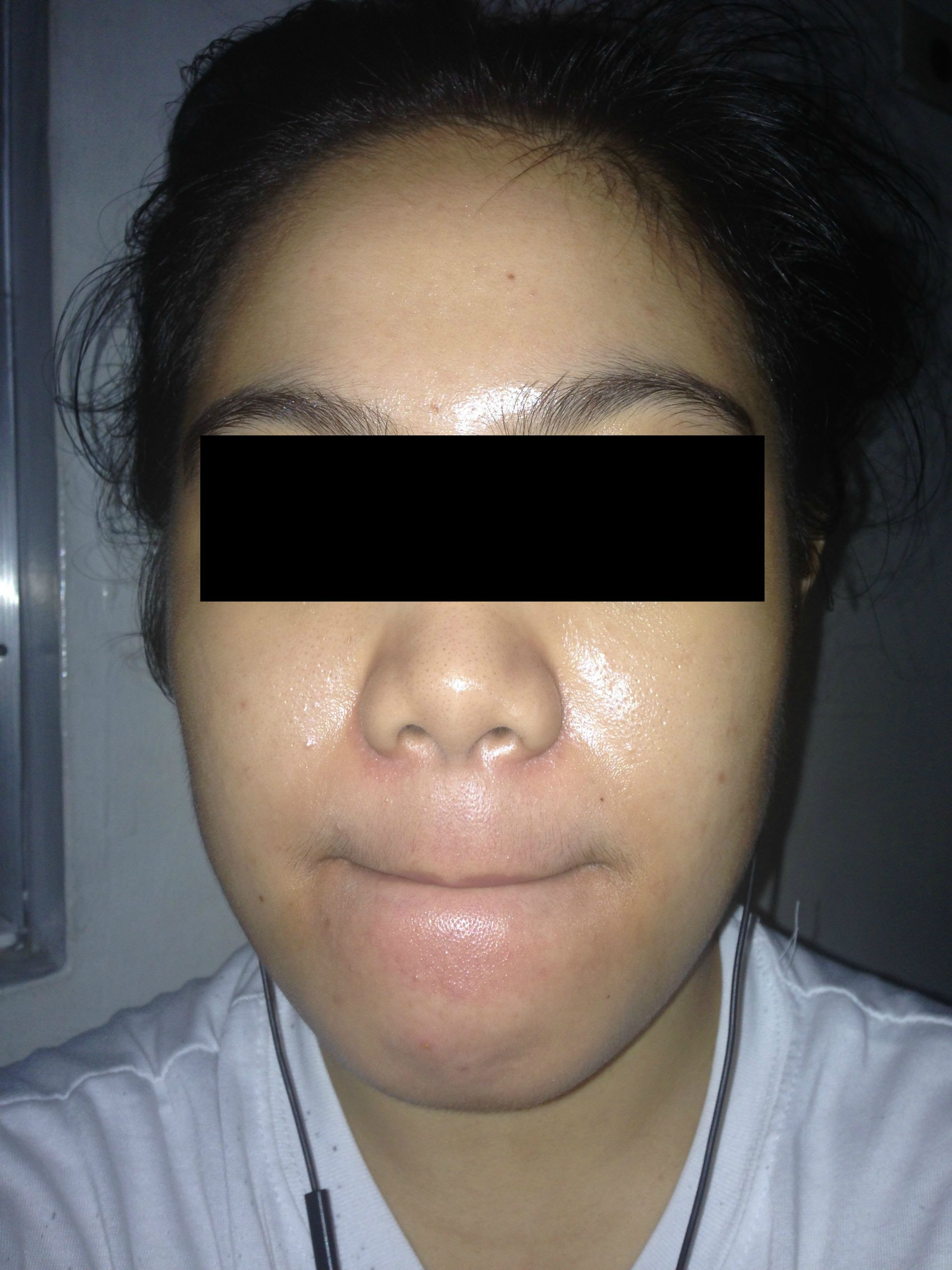 Upper Lip Discoloration (GREEN SHADOW) Help please ...
