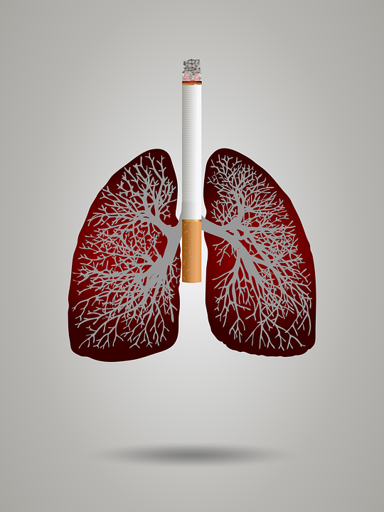 Smoking ​​​​Cigarette Is The Main Cause Of Lung Cancer Check It Out