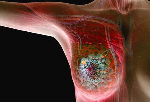 DEVELOPING: Amsterdam Scientists Shrunk Breast Tumors Without Chemo