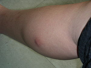 An uninfected sebaceous cyst found on the calf...