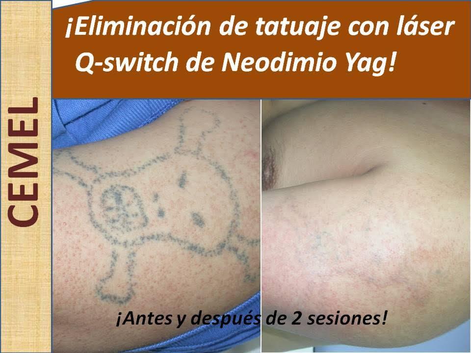 Eliminar Tatuajes En Las Palmas Doctor Siridión Fleitas