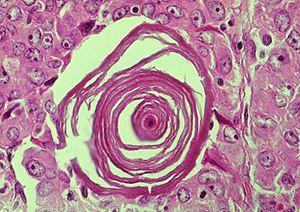 Mesothelioma Histology Usmle