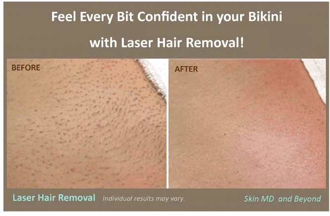 Laser Hair Removal Bikini Line Tattoo Removal Different Methods