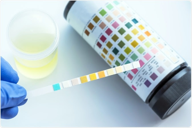 Reagent Strip for Urinalysis - Image Credit: Sirirat / Shutterstock