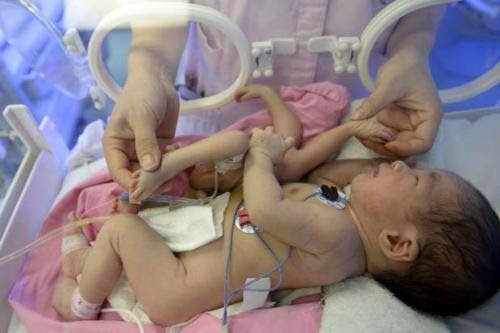 Baby Born With 4 Legs And 4 Hands Operated [Must See]