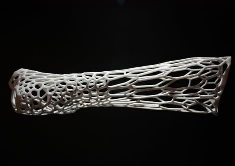 Cortex 3D-printed cast for fractured bones by Jake Evill