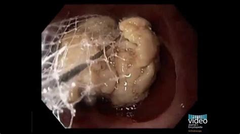 endoscopic management  foreign bodies