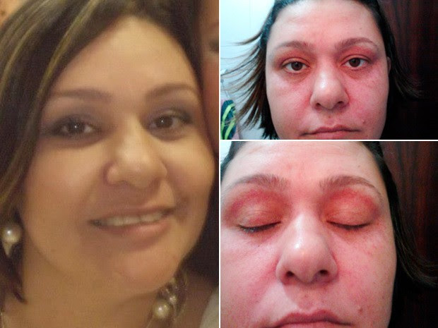 Imagens da vendedora antes e depois de consumir Ades, segundo ela (Foto: Arquivo Pessoal)