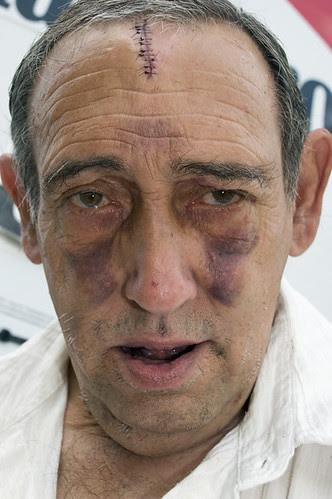 bobby's bobby black eyes_6108 web