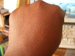 allergie-de-contact-huile-de-carottes.jpg