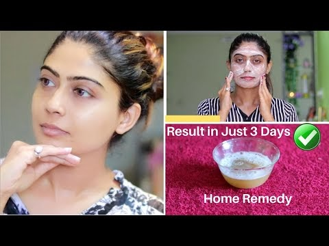 OMG 😮 This Facial Remove Your Dark Spots, Brown Spots, Pigmentation