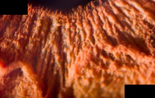 Fibras musculares del Iris (365-241)