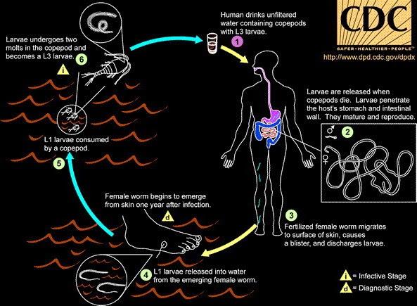 Dracunculus medinensis atau cacing Guinea  Cacing Ini Tumbuh Besar dan Keluar dari Tubuh Manusia Hidup