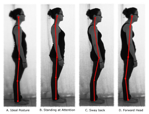 what is bad posture, how to correct posture, does posture cause pain, no such thing as bad posture, playful movement, mobility, move it or lose it.
