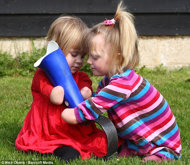 Here's how to do it: Ellie (right) shows off her new prosthetic leg to Charlotte, who hopes to get her first pair in a few months