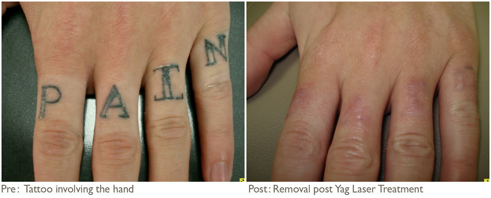 tattoo removal vanish method: Mei 2017