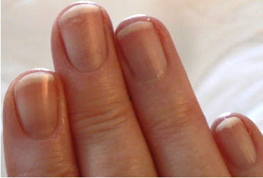 Fingernails and Redness | Health Boundaries