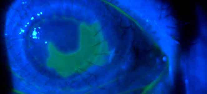 Ulcera de cornea fotos, imagens