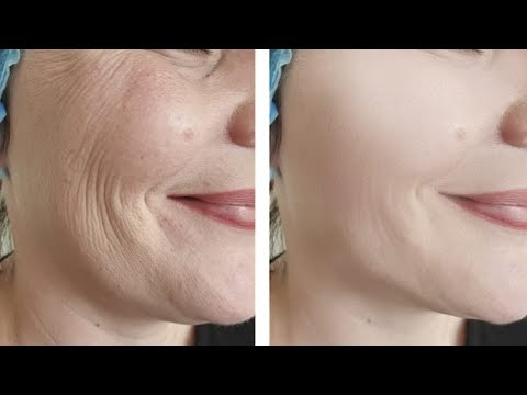 Skin Tightening and Face lifting Home Remedy | Face Pack
