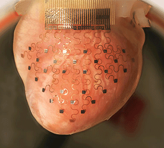 flexible-electronics-heart