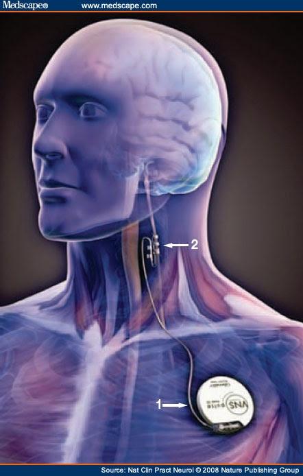 Gak Ngiro Rame Vagus Nerve Stimulation Manual Guide