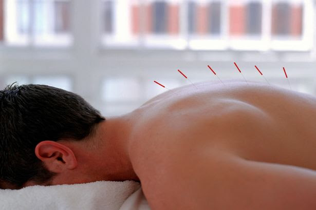 A man having acupuncture treatment