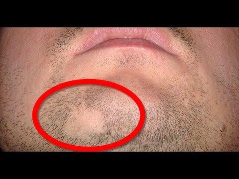 How to cure Alopecia Areata - YouTube