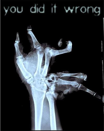 broken hand bawful